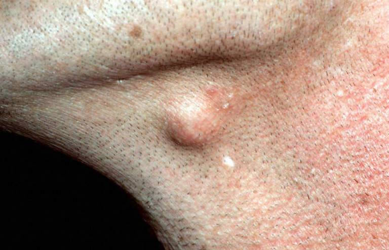 sebaceous cyst or epidermoid cyst