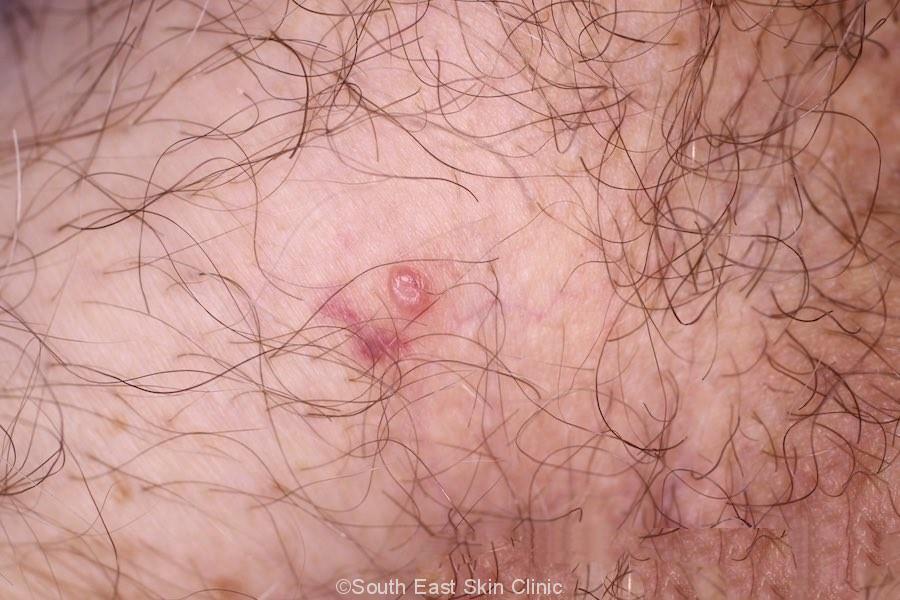 Genital Molluscum Contagiosum