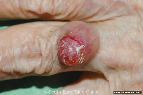 merkel cell carcinoma finger
