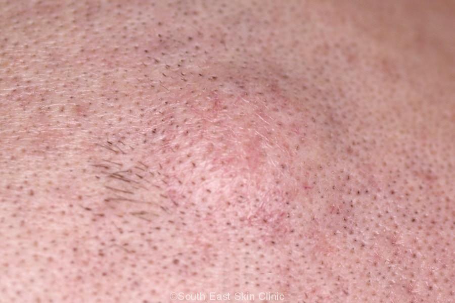 sebaceous cyst on scalp