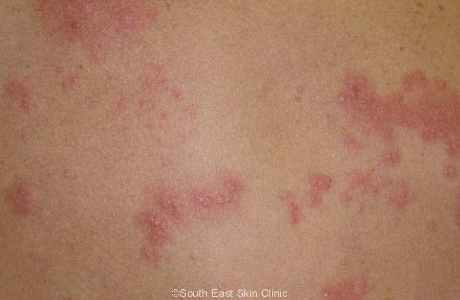 shingles of back