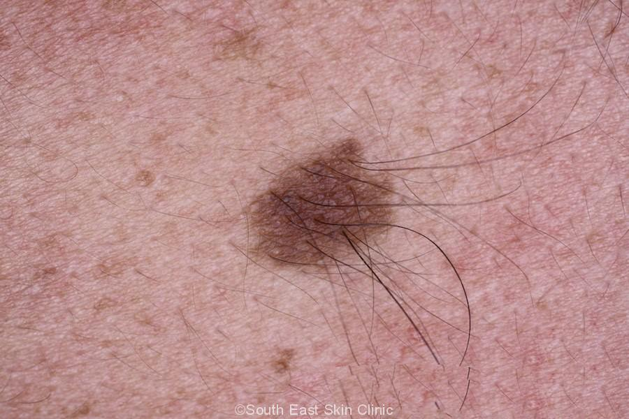congenital nevus with hairs