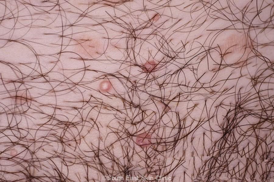 genital molluscum