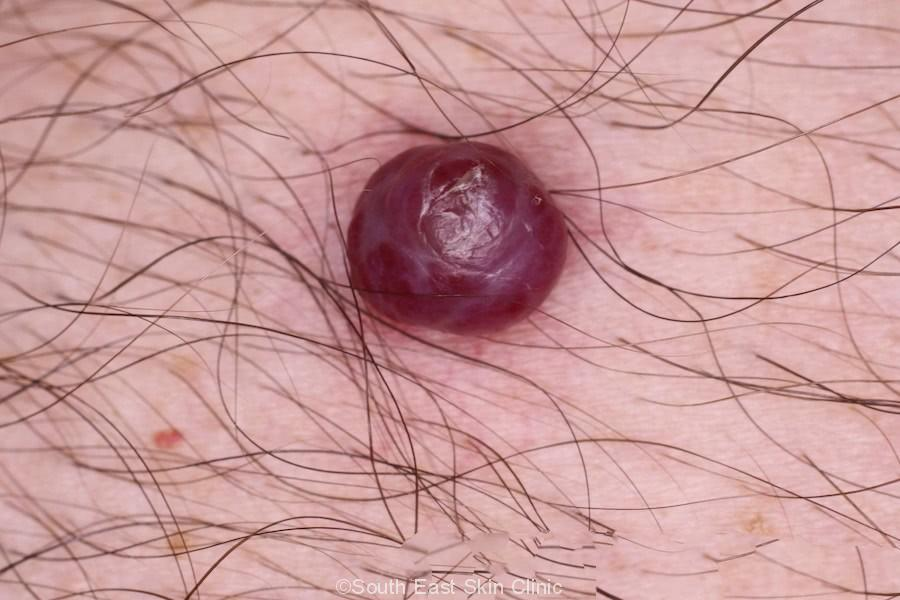 pyogenic granuloma in an adult
