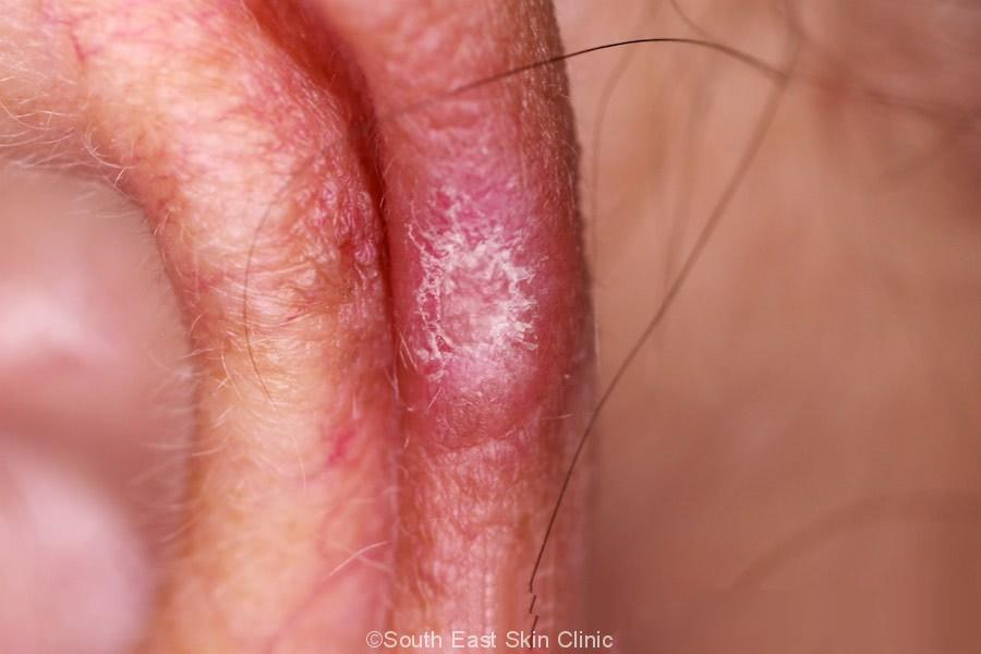 chondrodermatitis nodularis helicis