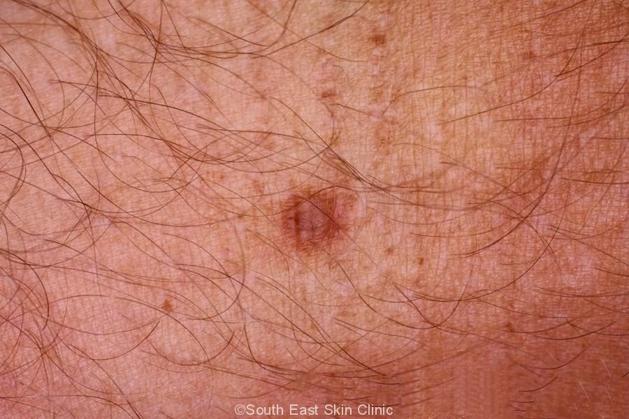 Typical Dermatofibroma