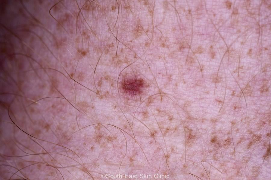 Dermatofibroma leg, unusually red