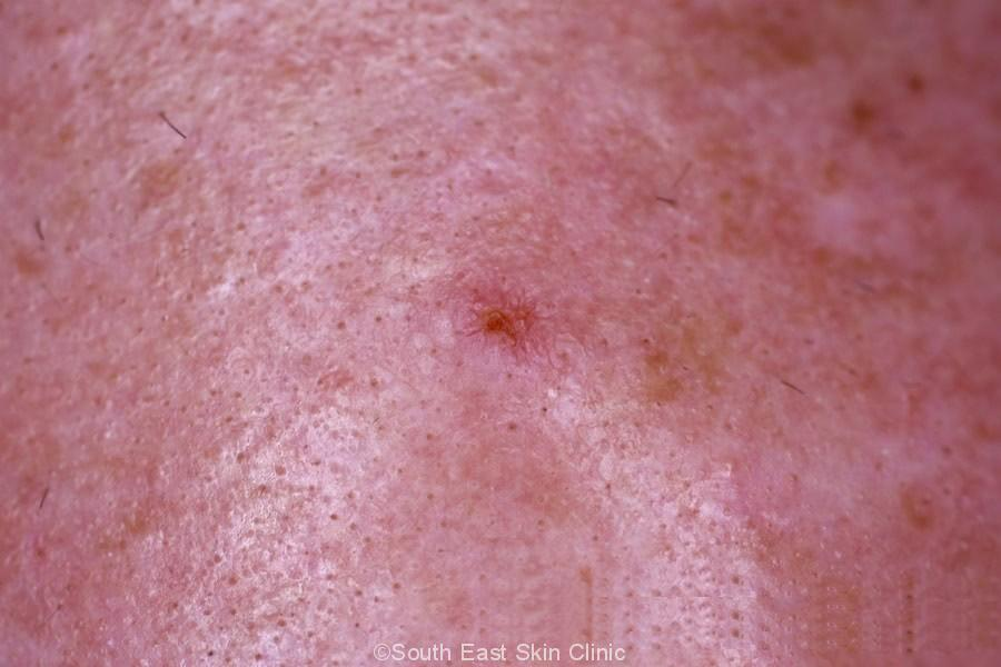 Squamous Cell Carcinoma Scalp