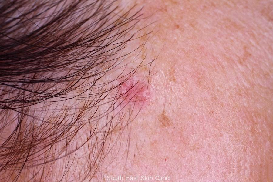 Superficial Multifocal Basal Cell Carcinoma temple