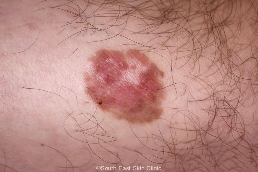 Classical bowen's disease lower leg