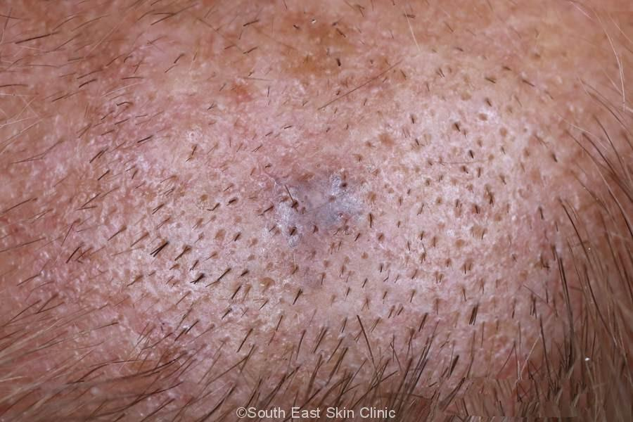 Intradermal Nevus of the scalp